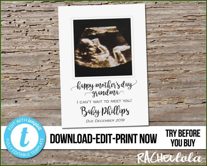 Printable Pregnancy Announcement Card Template